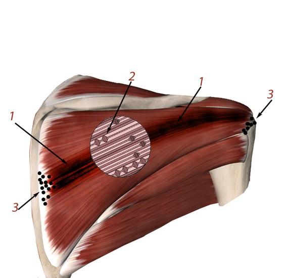 Комплекс триггерных точек в мышце плеча